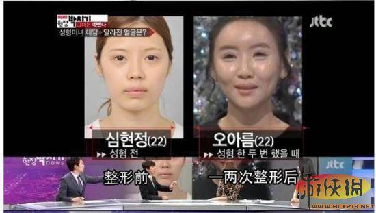 最后一张笑尿!女子在韩国整容超过20次的后果
